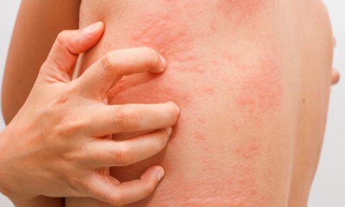 Запрещено использование облепихового масла при наличии аллергической реакции на продукт