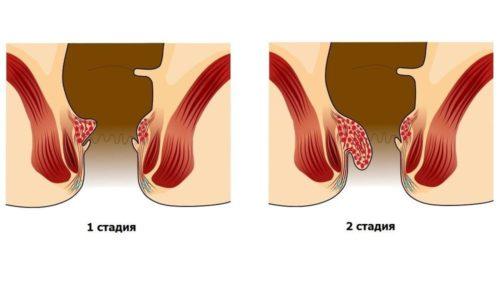 Для лечения геморроя 1 и 2 стадии наиболее подходящими являются прохладные, паровые и дымовые ванночки