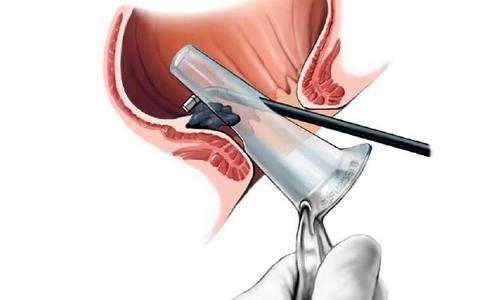 Анноскопия позволяет тщательно осмотреть 10 см внутренней области анального прохода и дистальной (конечной) области прямой кишки