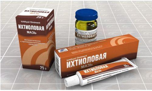 Ихтиоловая мазь имеет натуральный состав, поэтому безопасна при беременности