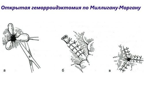 При использовании метода Миллигана-Моргана часто после операции на геморрой идет кровь