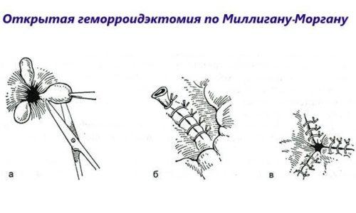Оперативное лечение по методу Миллигана-Моргана подразумевает одновременное иссечение нескольких наружных и внутренних узлов с частью кожи и слизистой, расширенные сосуды прошиваются