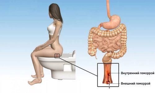 При смешанном типе геморроя воспаленные геморроидальные вены расположены и снаружи, и внутри анального канала