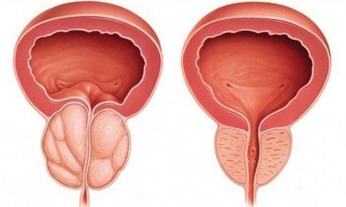 При появлении симптомов простатита пациент обязан настаивать на проведении дополнительной диагностики