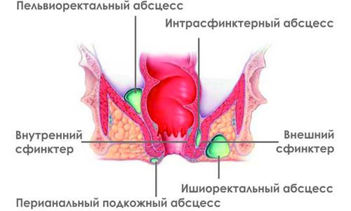 Схема парапроктита