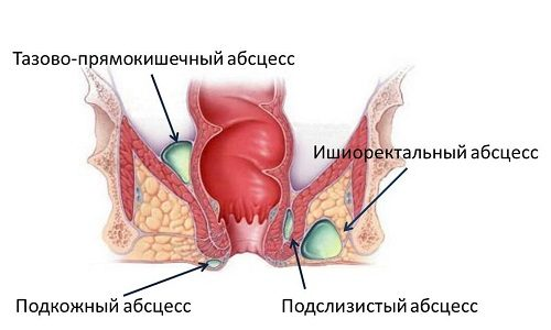 Виды парапроктита