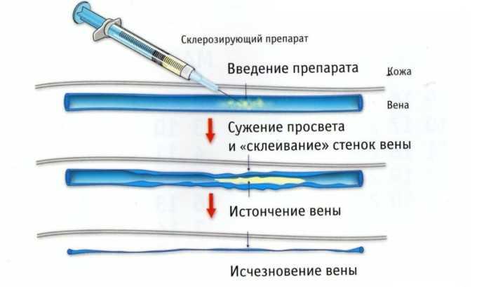 Во время склеротерапии в пораженный сосуд вводится склерозирующее вещество. Оно помогает склеить венозные стенки и наполнить узел соединительной тканью