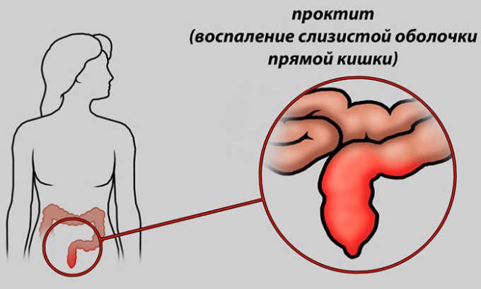 Ирригоскопию нельзя делать людям у которых идёт острый воспалительный процесс в кишечнике