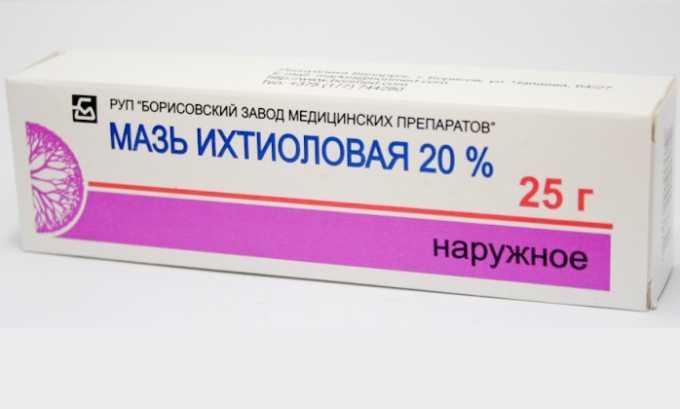 Мазь на основе ихтиола обладает выраженным обезболивающим и противовоспалительным свойством