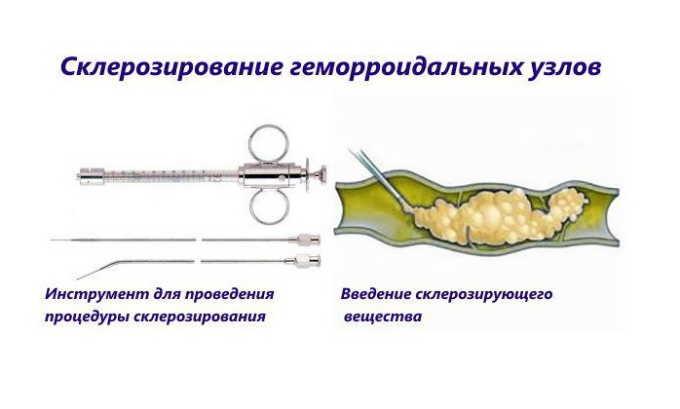 К малоинвазивным методам лечения наружных узлов и шишек у мужчин относятся инъекционная склеротерапия