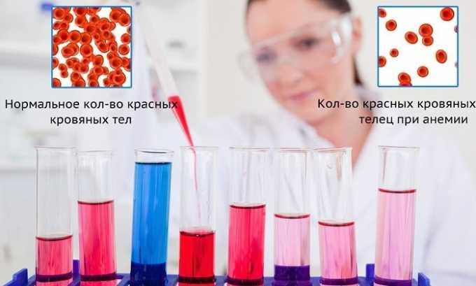 Кровотечения при геморрое постепенно станут более обильными и могут вызвать анемию