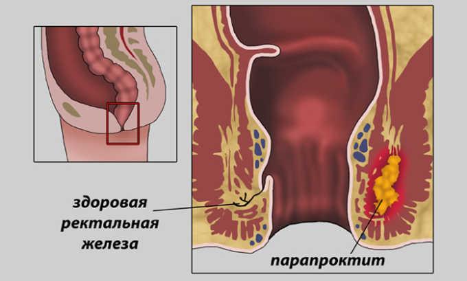 Парапроктит - это заболевание, при котором после операции вблизи ануса может развиться абсцесс