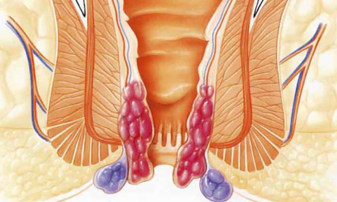 Ректальный пролапс - следствие повреждения в ходе операции нервных окончаний и мышечных волокон прямой кишки