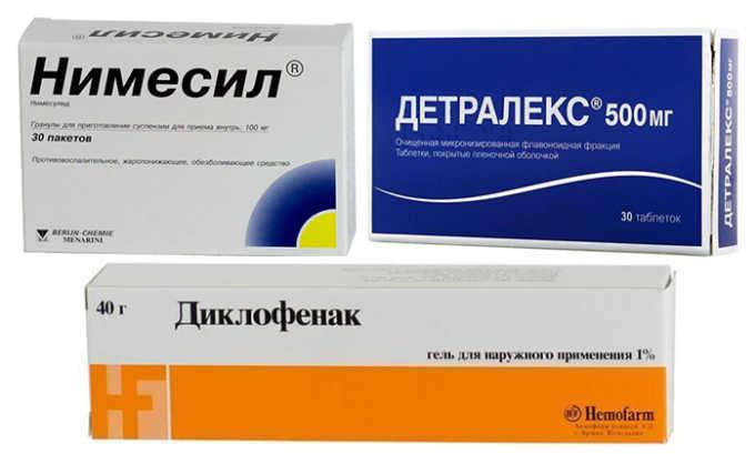 Таблетки (Диклофенак, Нимесил, Детралекс). Используются для устранения воспаления и нормализации состояния сосудов