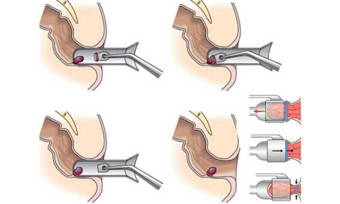 Лигирование - каждый узел у основания перетягивается латексным кольцом для прекращения кровоснабжения, в результате чего происходит его отмирание