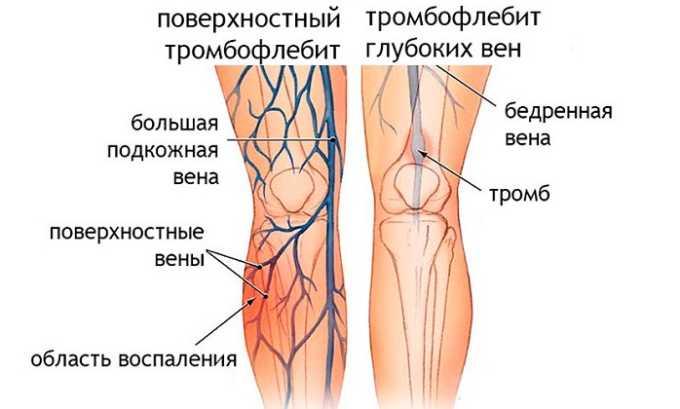 Использование чеснока запрещено для людей, страдающих от тромбофлебита