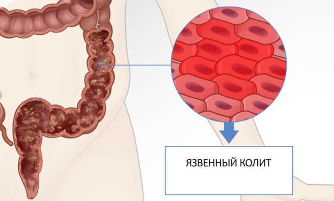 Длительное течение геморроя приводит к обширному поражению слизистой оболочки кишечника, которое называется язвенный колит