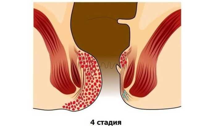 К лечению геморроя с применением геморроидэктомии прибегают при 4 стадии болезни