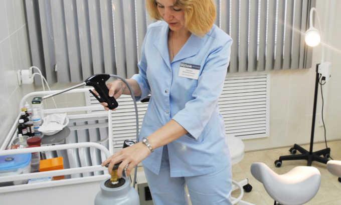 Криодеструкция - замораживание жидким азотом