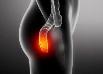 Симптомы и лечение 3 стадии геморроя