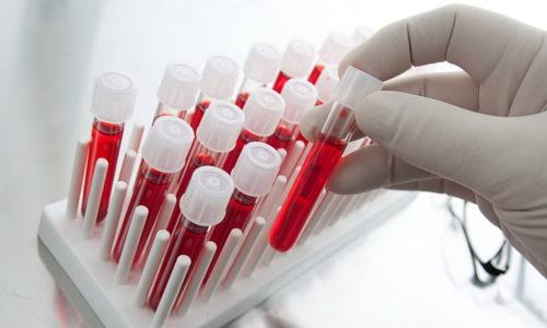 Общий анализ крови используется для диагностики анемии и острого воспалительного процесса, возникающих на фоне хронического и острого геморроя