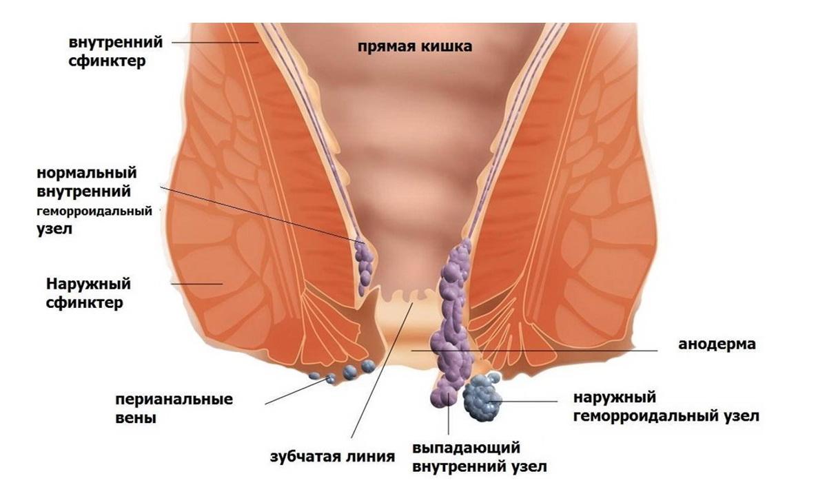 Хроническая задняя анальная трещина и геморрой 2 степени