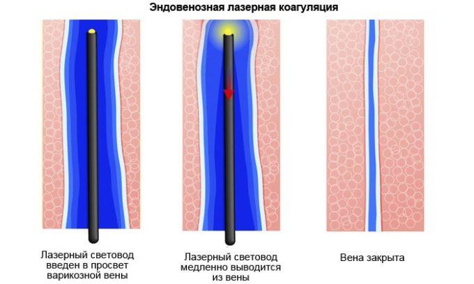 Во время процедуры коагуляции геморроидальный узел прогревают кварцевым светодиодом. Расширенный участок сосуда через несколько дней отмирает