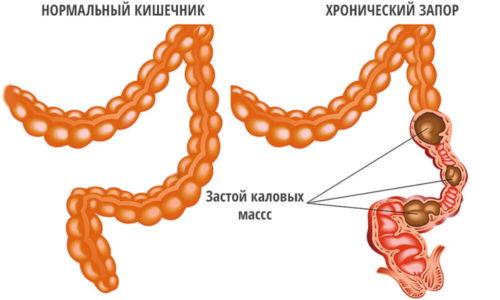 Запор диагностируется при задержке стула более 48 часов. Если запор возникает при геморрое, то повышается риск инфицирования слизистой оболочки анального отверстия в результате попадания в микротрещины патогенной флоры