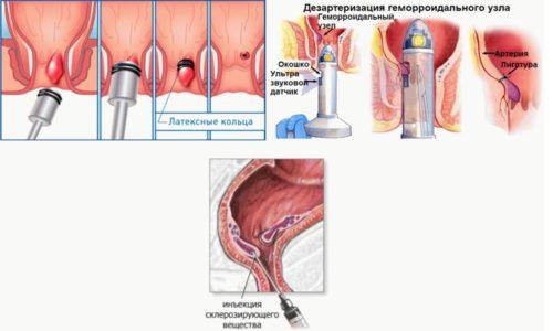 При лигировании узла используется латексное кольцо, которое надевают на воспаленный узел, в результате чего в очаг воспаления не поступает кровь и питательные вещества