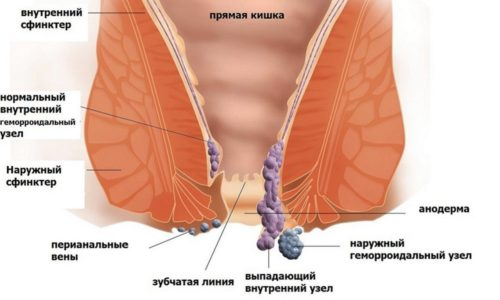 Геморрой представляет собой патологическое изменение вен аноректальной зоны, которое причиняет человеку дискомфорт, боль и может угрожать жизни