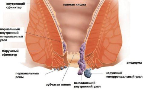Наружные геморроидальные узлы формируются в самом дальнем отделе прямой кишки возле ануса и под кожным покровом промежности, они представляют собой выпуклые сосудистые образования