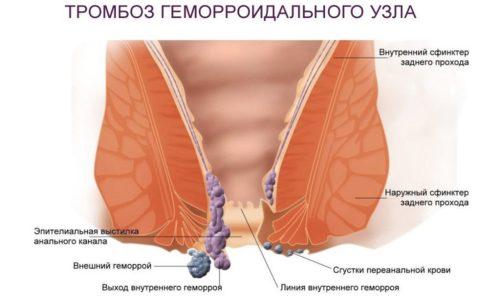 Тромбированный геморрой - это заболевание кишечника и сосудов, характеризующееся расширением вен в области заднего прохода и образованием в них тромба (сгустка крови, плотно прикрепленного к стенке)