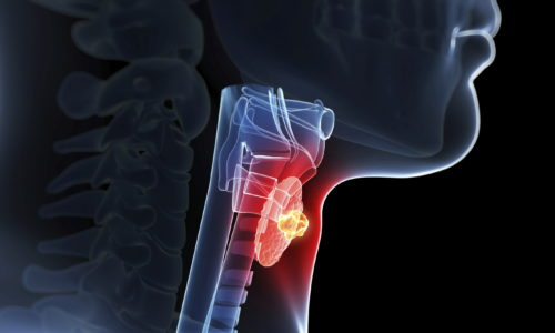 При гипертиреозе ректальные препараты с белладонной против геморроя использовать можно, но с большой осторожностью