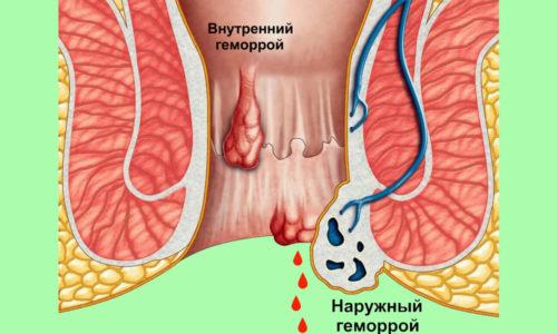 Геморрой имеет 4 стадии развитии и при отсутствии своевременного лечения часто приобретает форму хронического