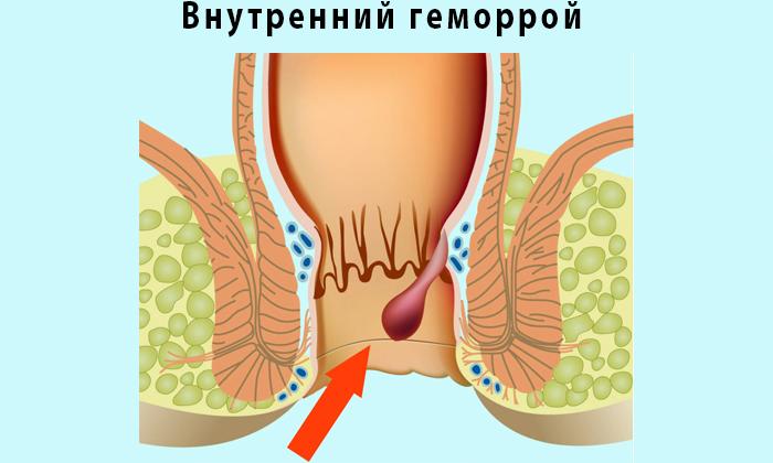 Польза от анальный секс при выпадении гемороидальных узлов