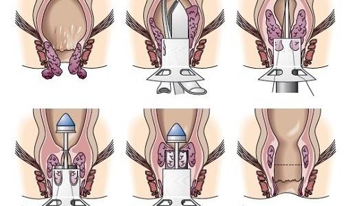 Геморроидопексия по методу Лонго — более щадящий операционный способ борьбы с геморроем