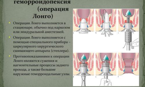 Геморроидопексия применяется при геморрое в тяжелых случаях заболевания