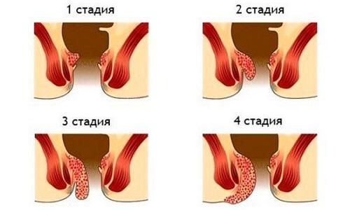 Применение гирудотерапии на ранних стадиях заболевания позволяет полностью избавиться от геморроя за 5-10 сеансов