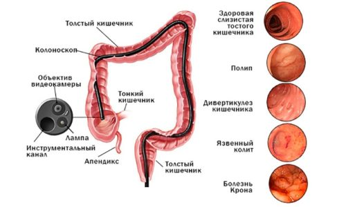 Колоноскопия используется для выявления сопутствующих патологий толстого кишечника