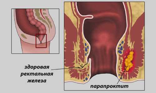 Парапроктит характеризуется накоплением гноя в мягких тканях
