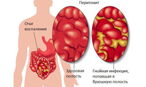 Инфекция может не только локализоваться в области геморроидальных узлов, но и переходить на подкожную жировую клетчатку