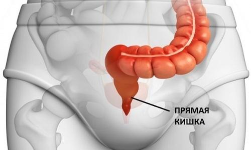 Внутренние геморроидальные узлы формируются на стенках прямой кишки