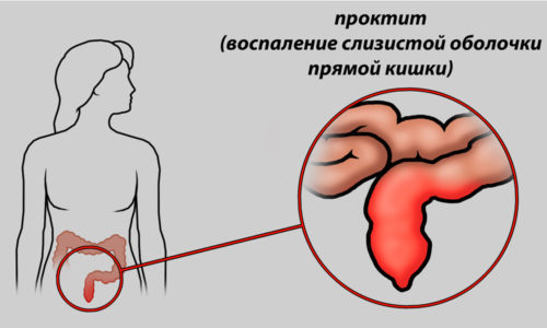 Проктит является показанием к использованию ректальных суппозиториев с прополисом