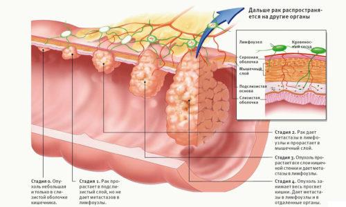 Грозное осложнение варикозного расширения вен - изменение морфологических характеристик клеток и их перерождение, что грозит озлокачествлением и развитием онкологии