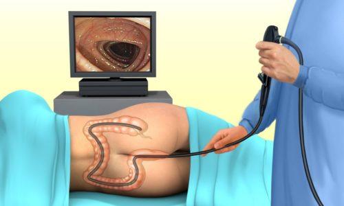 Затем проводится ректороманоскопия - метод визуализации прямой кишки с помощью аппарата
