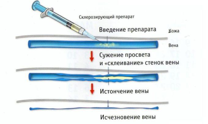 Во время процедуры склерозирования препарат вводится в геморроидальную шишку, из-за чего стенки пораженного сосуда склеиваются