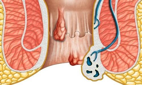 Геморроидальная шишка — это небольшое плотное образование, которое формируется на стенке прямой кишки в результате варикозного расширения кровеносного сосуда