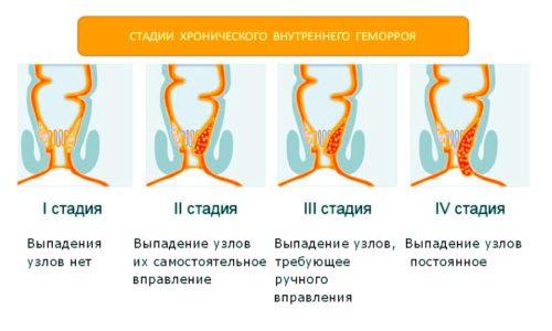Геморрой проходит четыре стадии развития