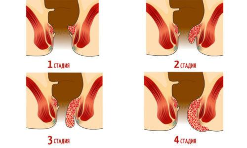 Первичная диагностика комбинированного геморроя проводится по симптомокомплексу, характерному для каждой стадии развития этого заболевания