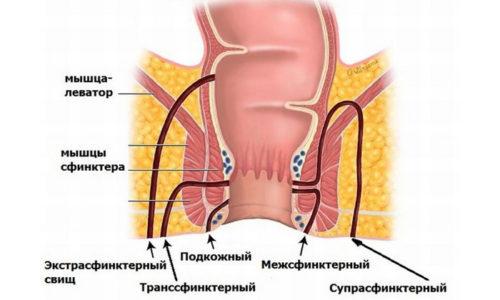 Свищи могут образоваться из-за неправильных хирургических манипуляций во время операции, если при наложении швов захватываются инфицированные мышцы